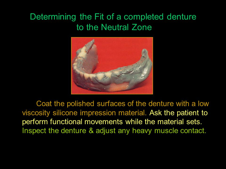 Determining the Fit of a completed denture to the Neutral Zone