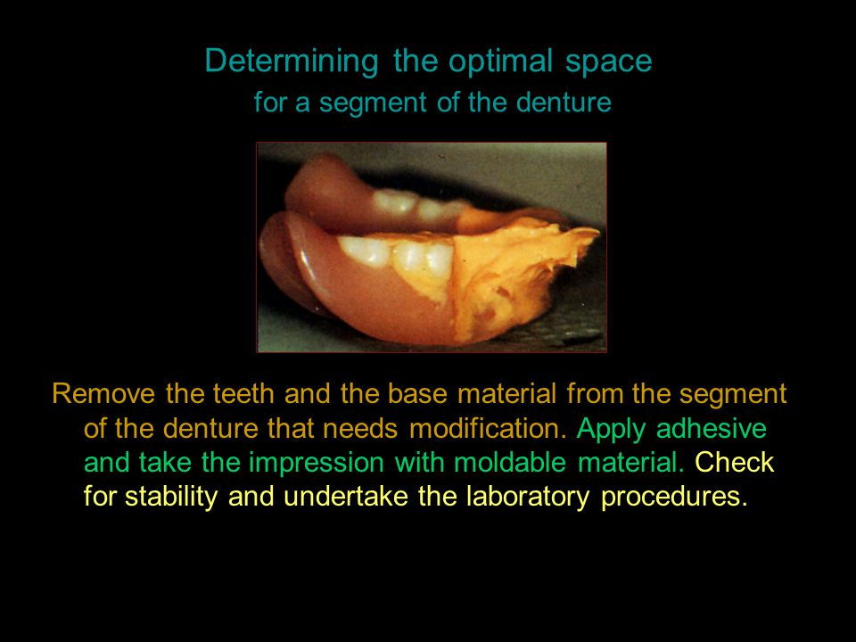 Determining the optimal space for a segment of the denture