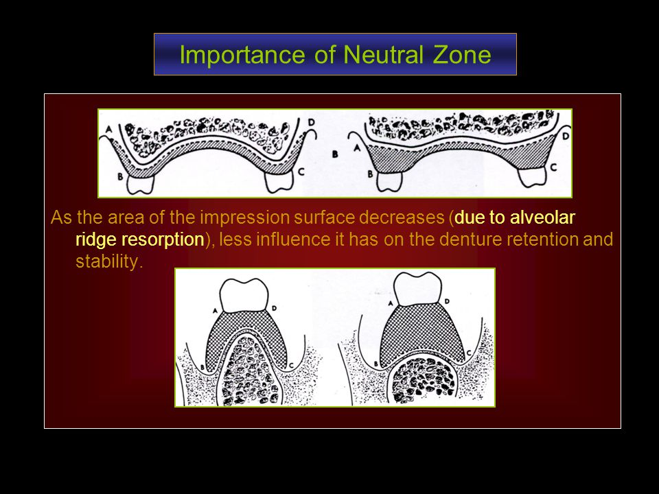 Importance of Neutral Zone