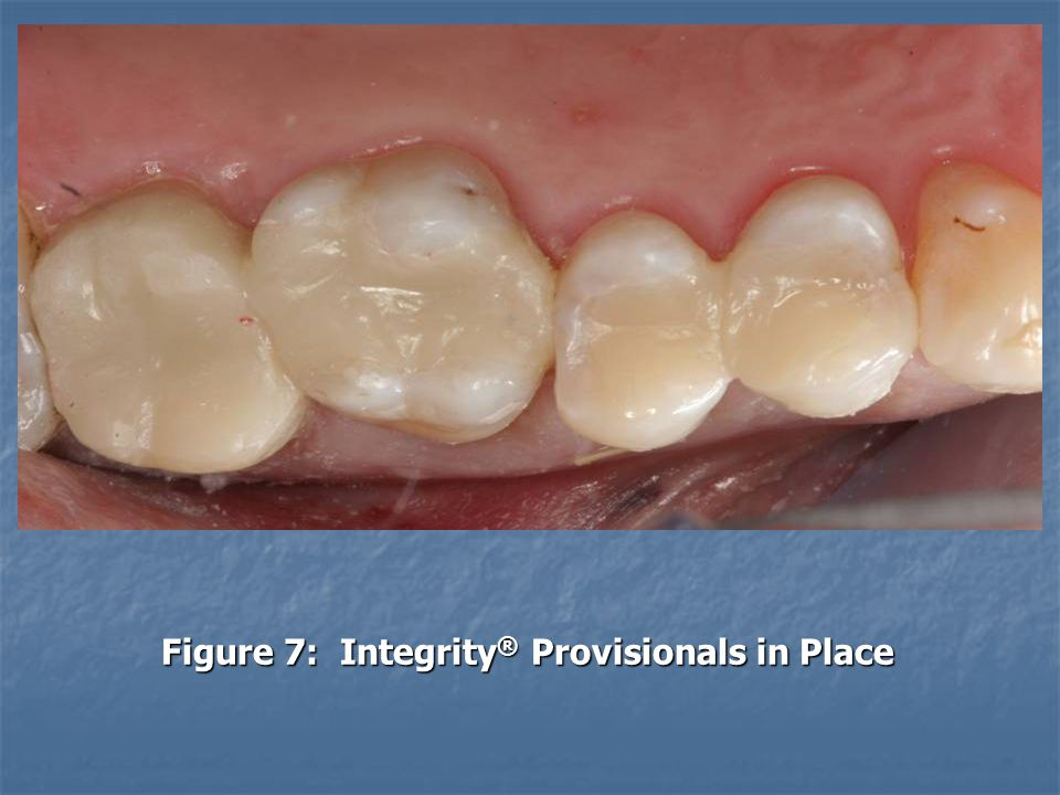 Figure 7: Integrity® Provisionals in Place