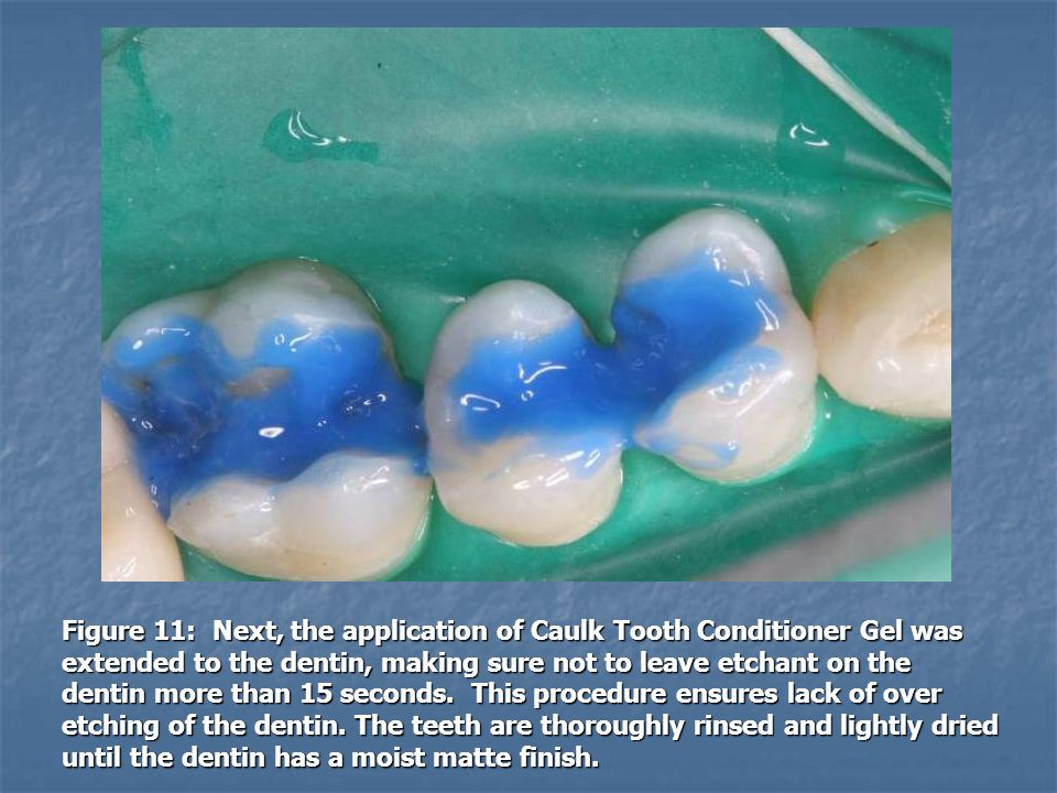 Figure 11: Next, the application of Caulk Tooth Conditioner Gel was extended to the dentin, making sure not to leave etchant on the dentin more than 15 seconds.