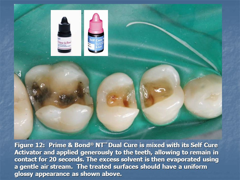 Figure 12: Prime & Bond® NT™ Dual Cure is mixed with its Self Cure Activator and applied generously to the teeth, allowing to remain in contact for 20 seconds.
