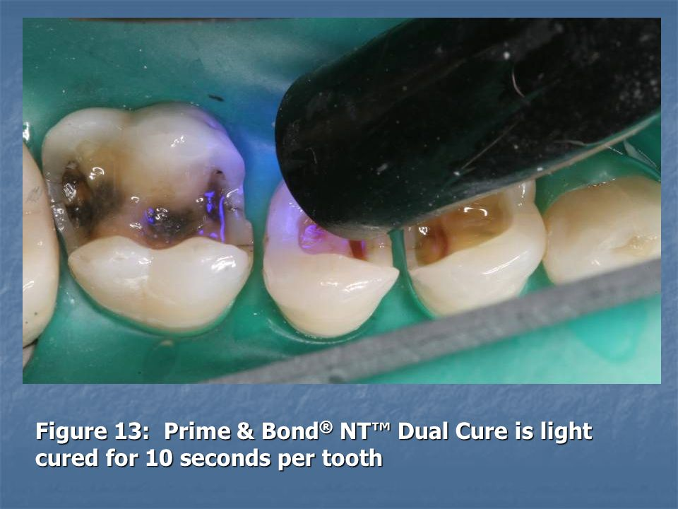 Figure 13: Prime & Bond® NT™ Dual Cure is light cured for 10 seconds per tooth