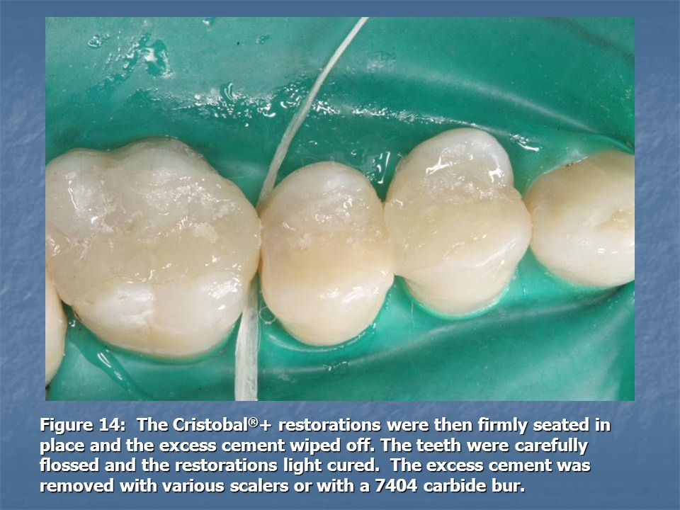 Figure 14: The Cristobal®+ restorations were then firmly seated in place and the excess cement wiped off.