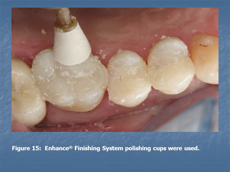 Figure 15: Enhance® Finishing System polishing cups were used.