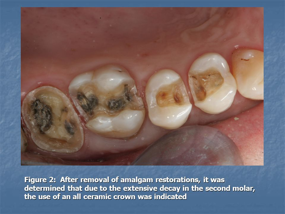 Figure 2: After removal of amalgam restorations, it was determined that due to the extensive decay in the second molar, the use of an all ceramic crown was indicated