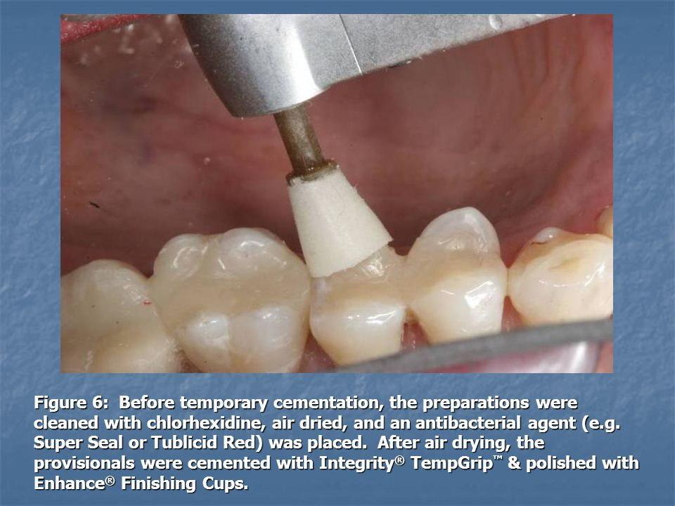 Figure 6: Before temporary cementation, the preparations were cleaned with chlorhexidine, air dried, and an antibacterial agent (e.g.