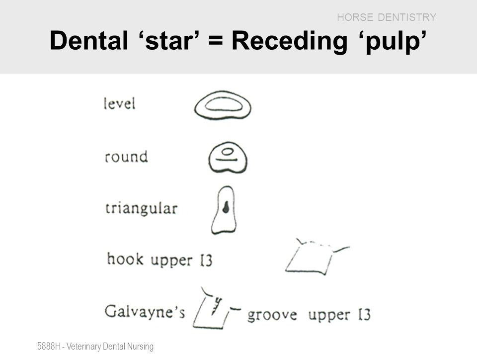 Dental 'star' = Receding 'pulp'
