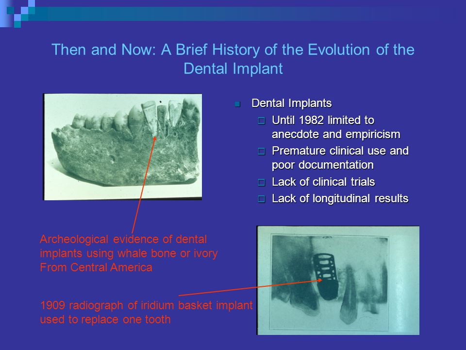 Then and Now: A Brief History of the Evolution of the Dental Implant