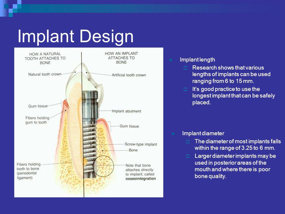 Implant Design Implant length