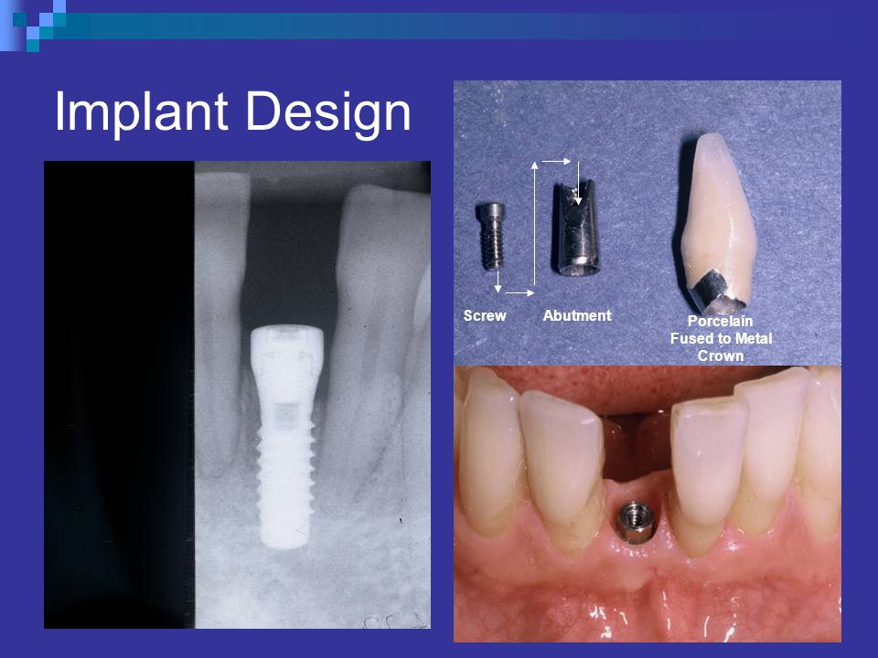 Implant Design Screw Abutment Porcelain Fused to Metal Crown