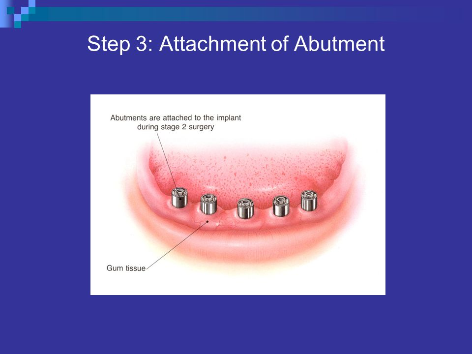 Step 3: Attachment of Abutment