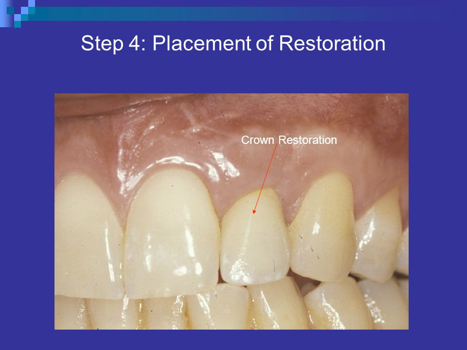 Step 4: Placement of Restoration