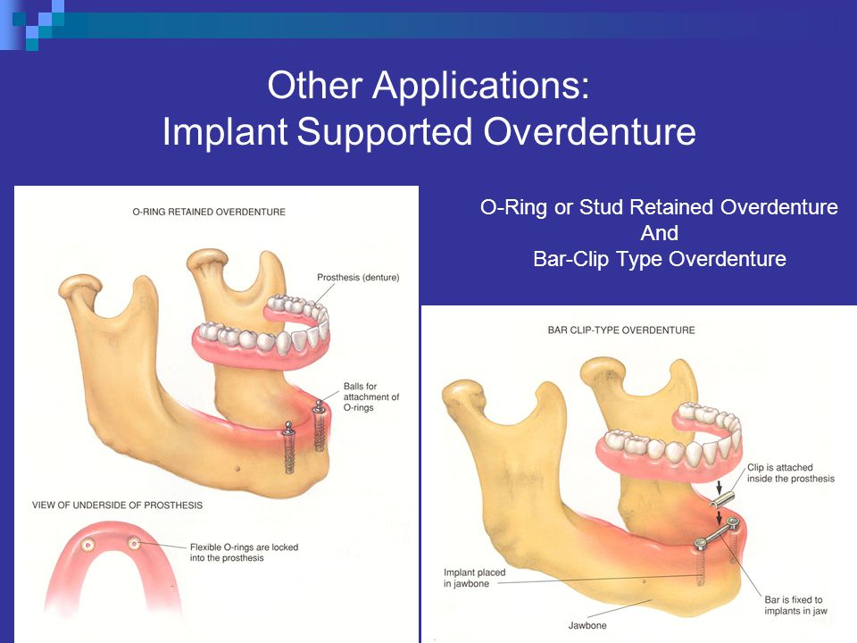 Other Applications: Implant Supported Overdenture