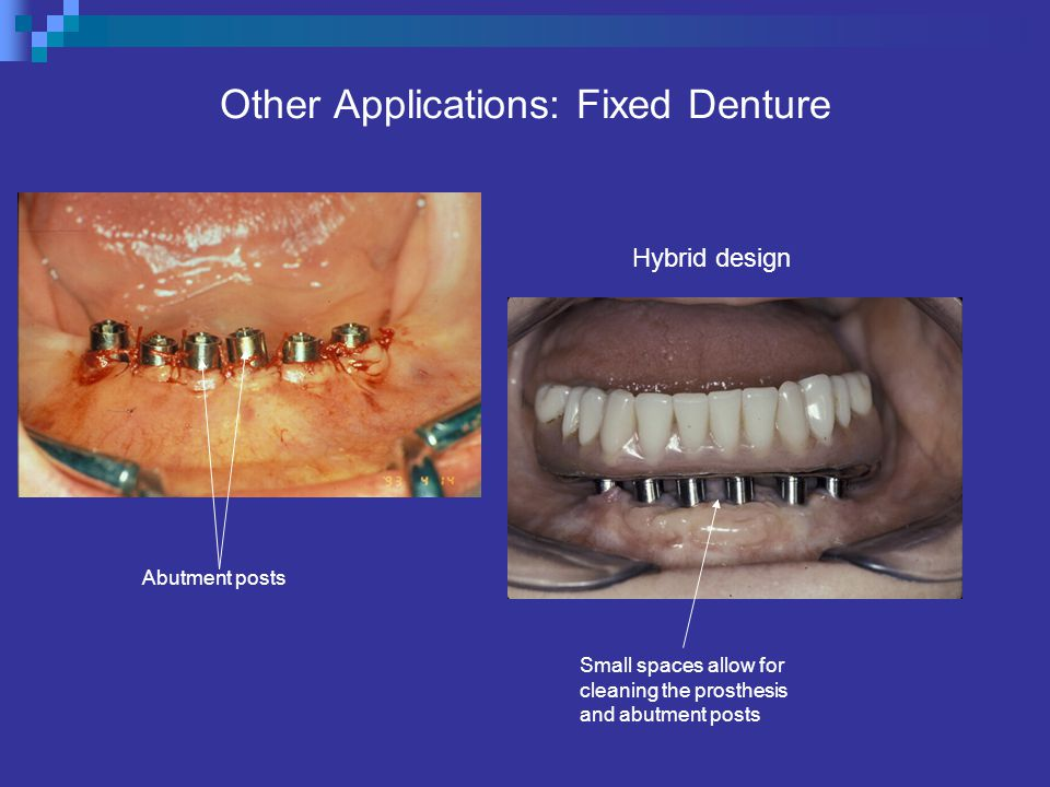 Other Applications: Fixed Denture