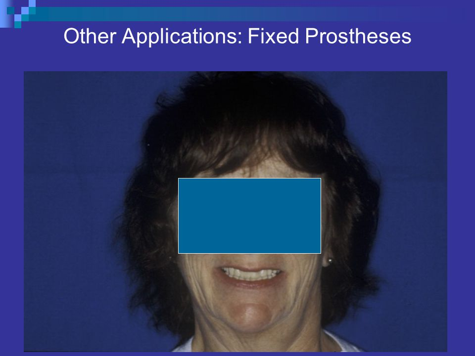Other Applications: Fixed Prostheses