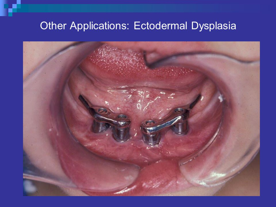 Other Applications: Ectodermal Dysplasia