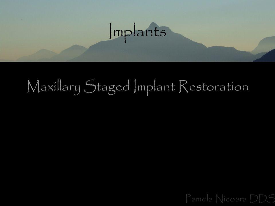 Maxillary Staged Implant Restoration