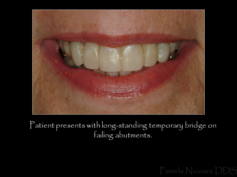 Patient presents with long-standing temporary bridge on failing abutments.