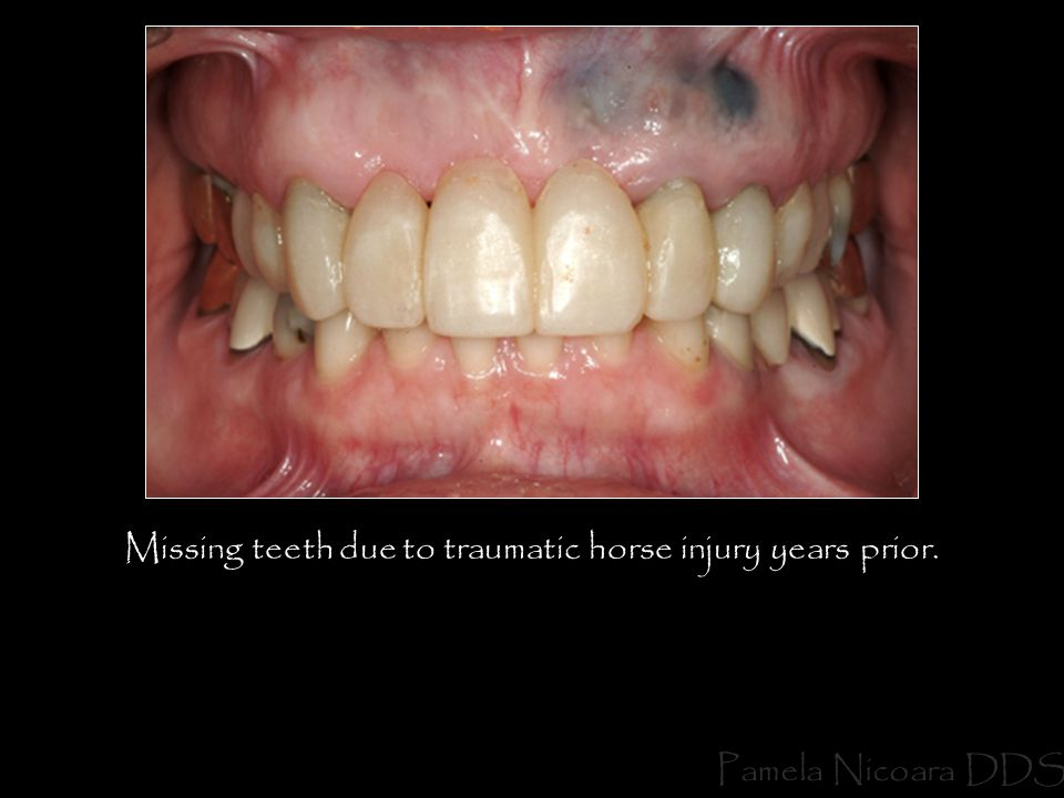 Missing teeth due to traumatic horse injury years prior.