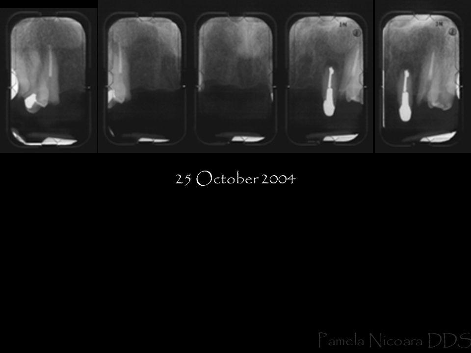 25 October 2004 Pamela Nicoara DDS