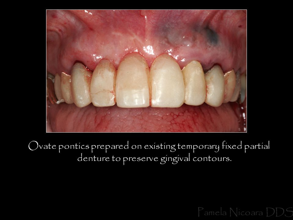 Ovate pontics prepared on existing temporary fixed partial denture to preserve gingival contours.