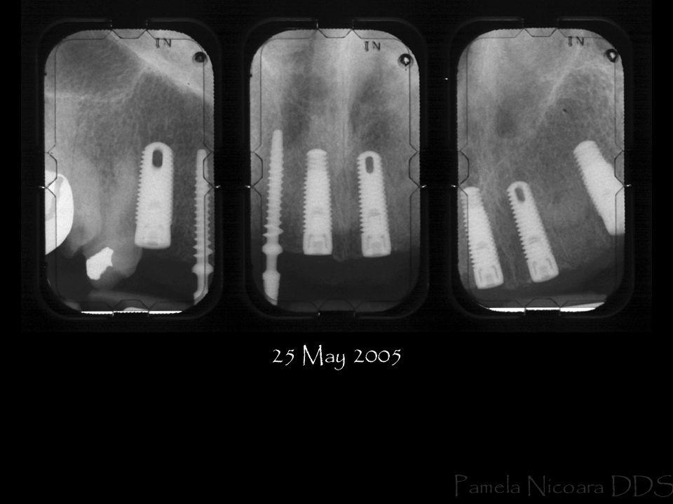 25 May 2005 Pamela Nicoara DDS