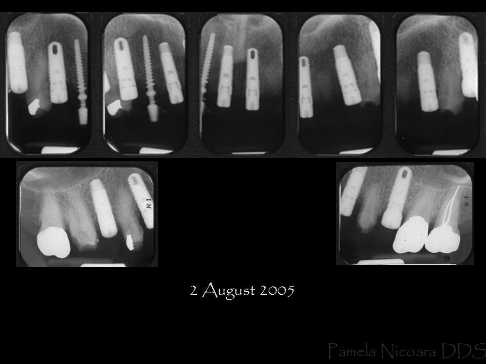 2 August 2005 Pamela Nicoara DDS
