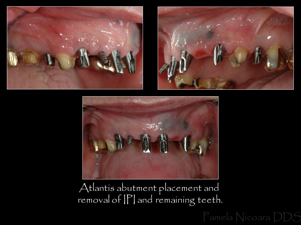 Atlantis abutment placement and removal of IPI and remaining teeth.