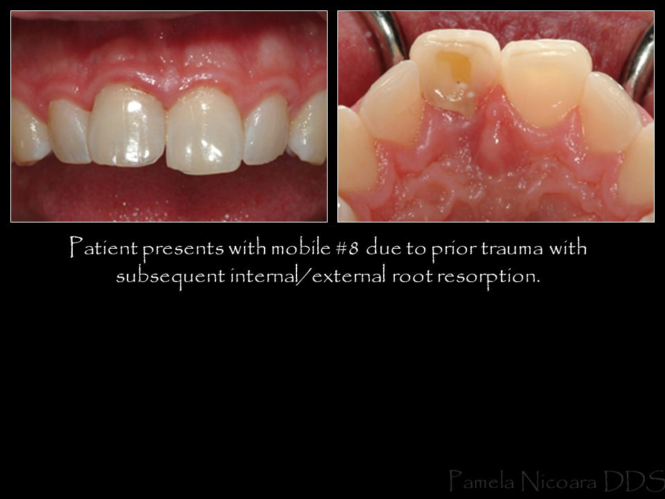 Patient presents with mobile #8 due to prior trauma with subsequent internal/external root resorption.