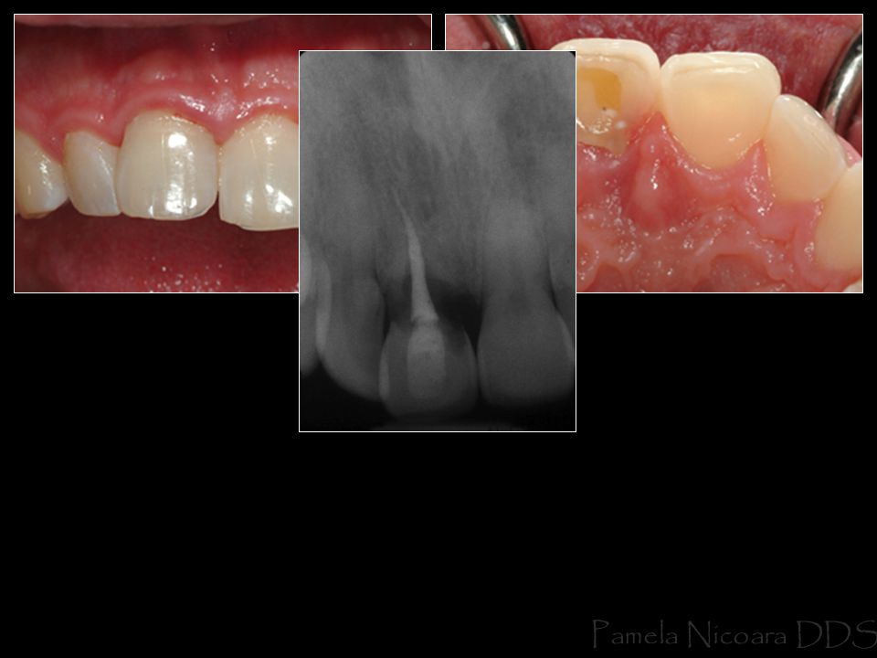 Immediate implant possible because of good apical bone …