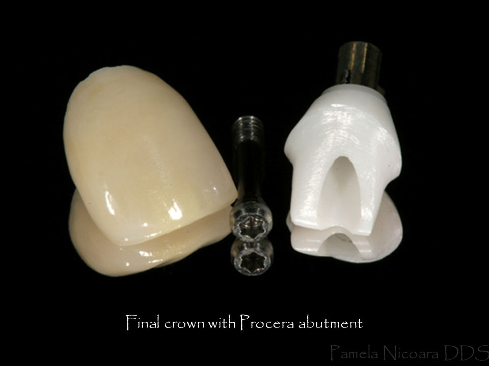Final crown with Procera abutment
