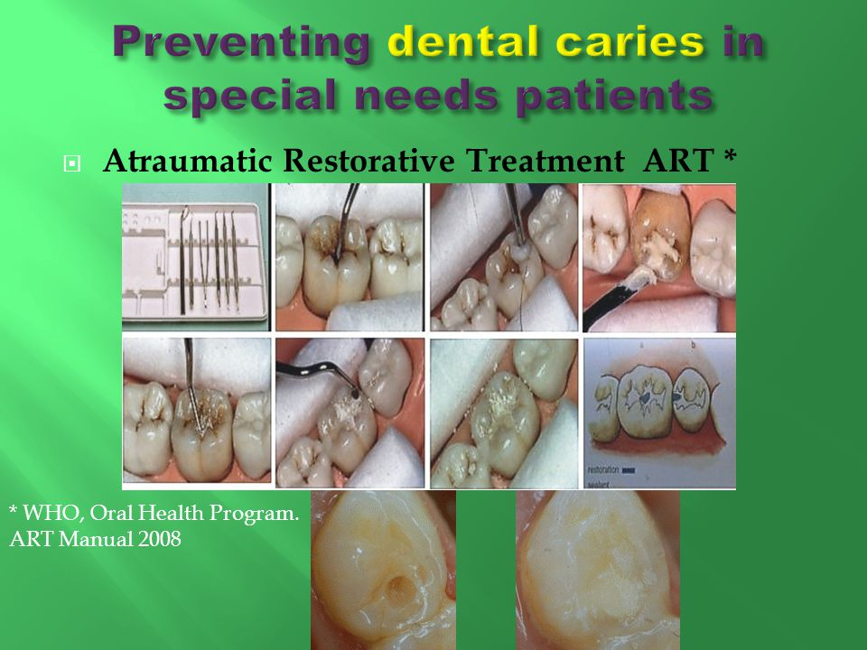 Preventing dental caries in special needs patients
