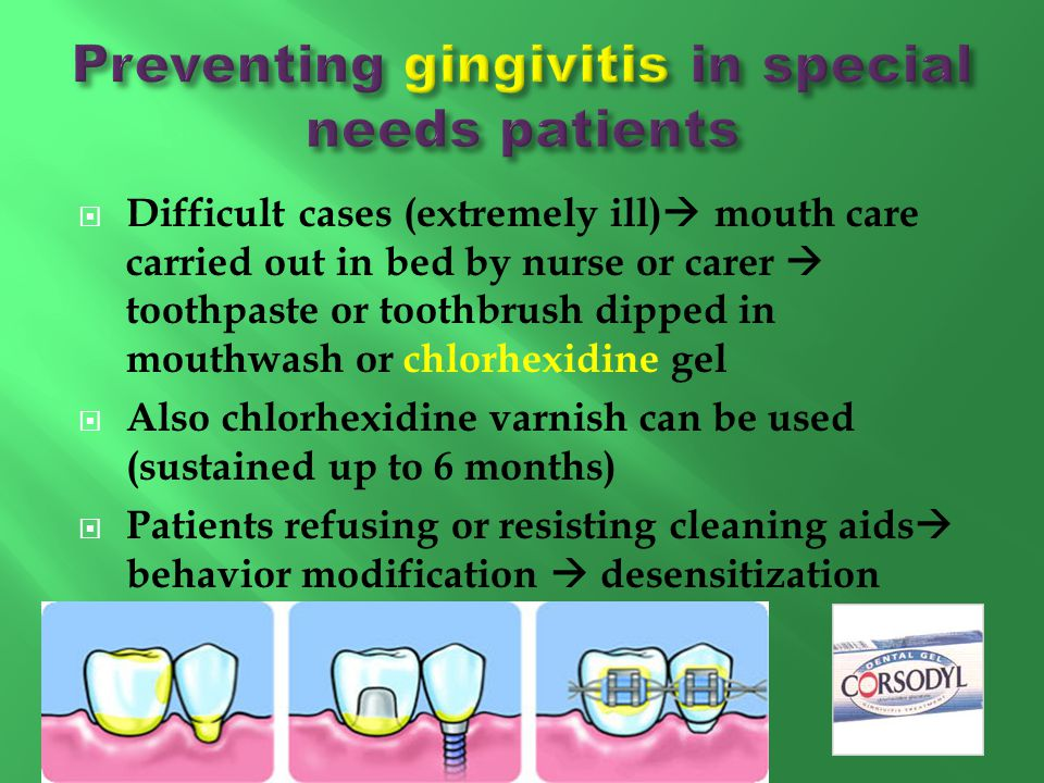 Preventing gingivitis in special needs patients