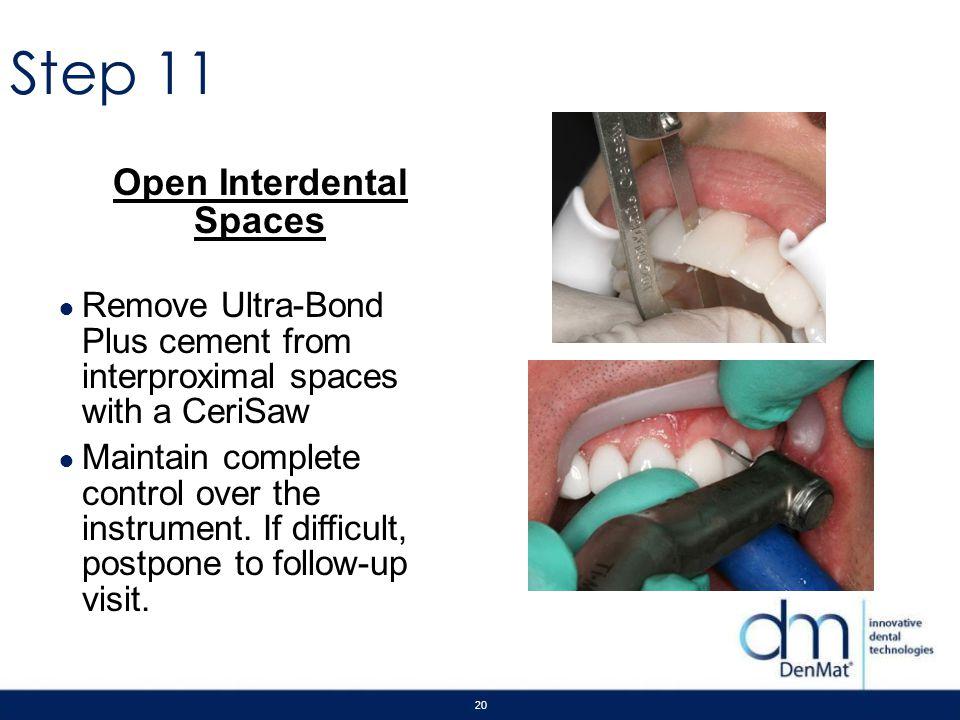 Open Interdental Spaces