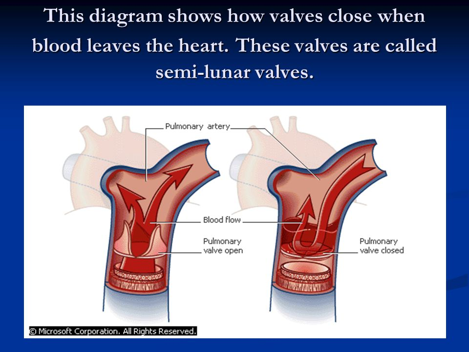 This diagram shows how valves close when blood leaves the heart