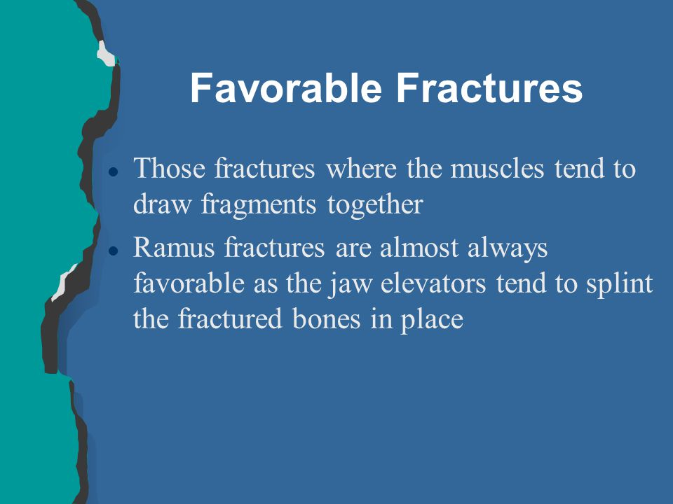Favorable Fractures Those fractures where the muscles tend to draw fragments together.