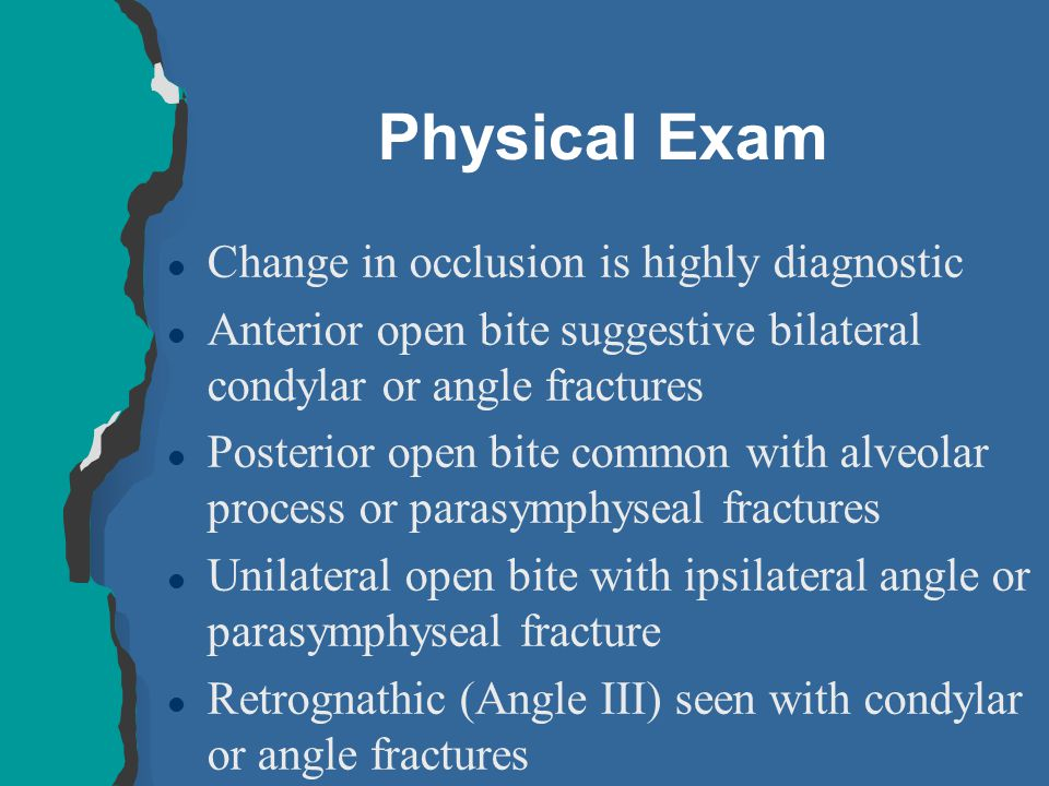 Physical Exam Change in occlusion is highly diagnostic
