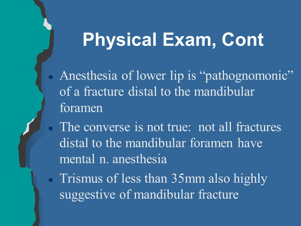 Physical Exam, Cont Anesthesia of lower lip is pathognomonic of a fracture distal to the mandibular foramen.