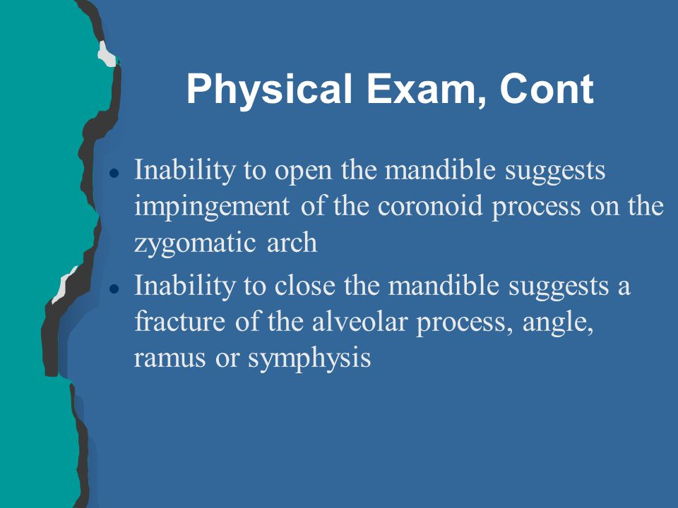 Physical Exam, Cont Inability to open the mandible suggests impingement of the coronoid process on the zygomatic arch.
