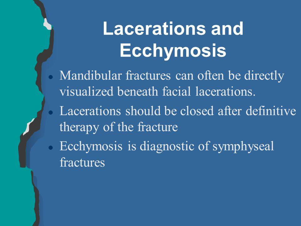 Lacerations and Ecchymosis