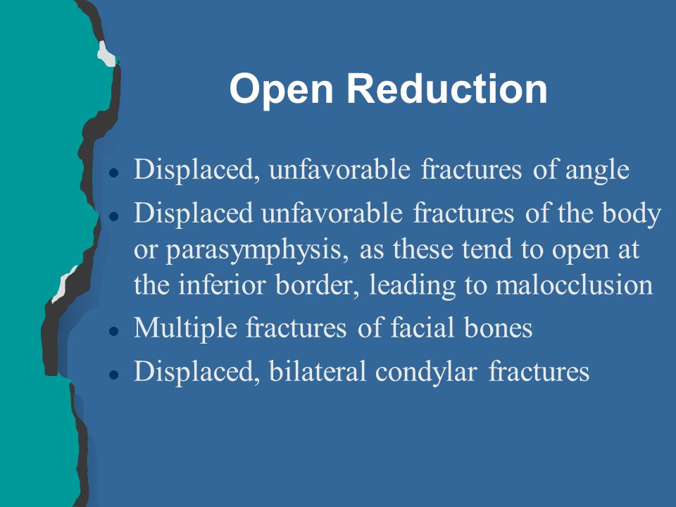 Open Reduction Displaced, unfavorable fractures of angle