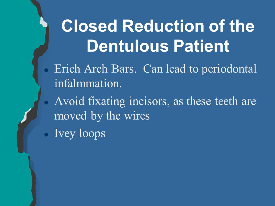 Closed Reduction of the Dentulous Patient