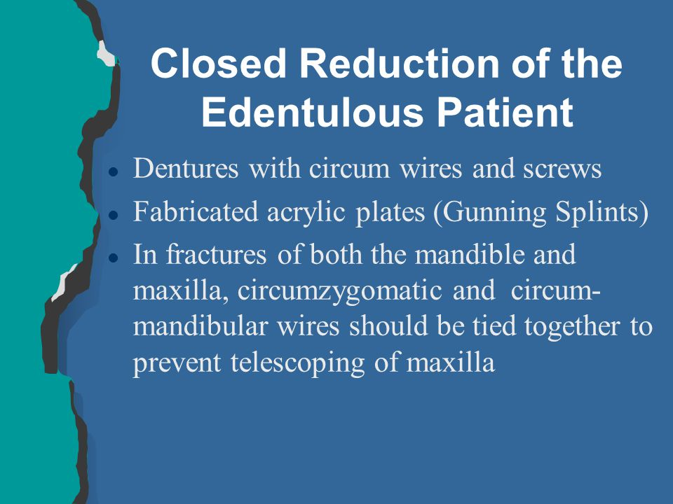 Closed Reduction of the Edentulous Patient