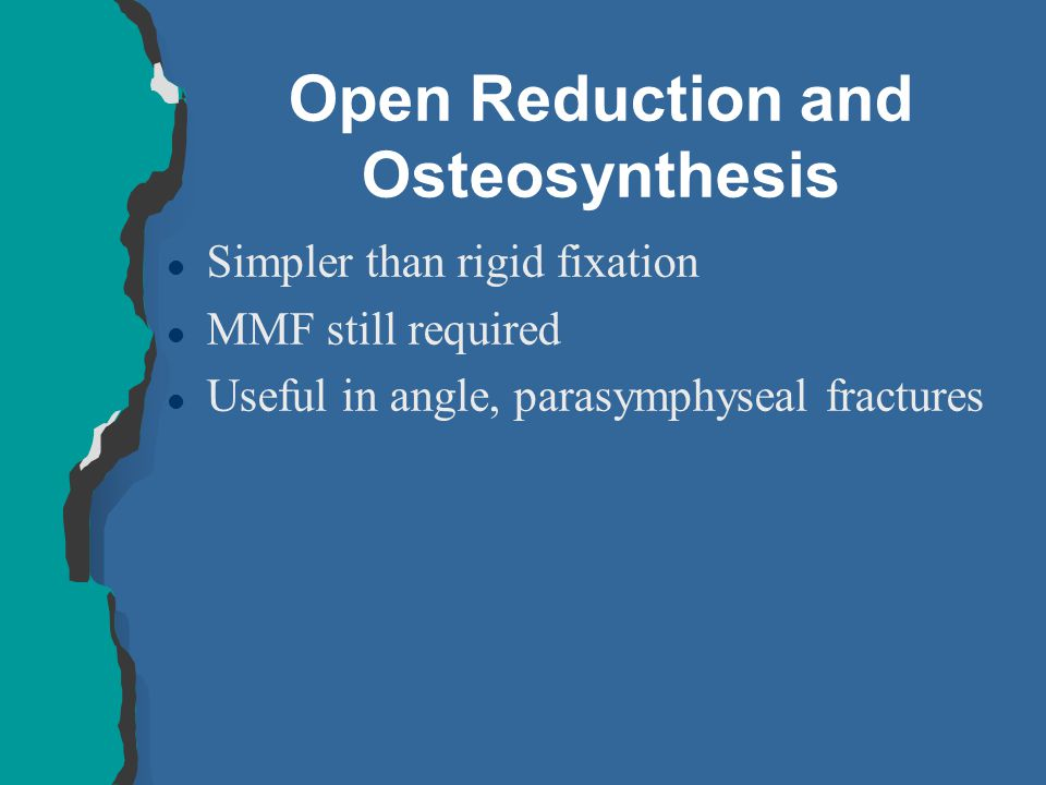 Open Reduction and Osteosynthesis