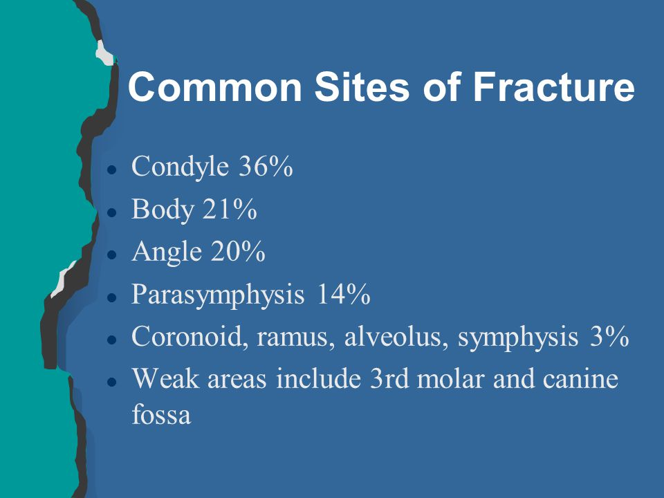 Common Sites of Fracture
