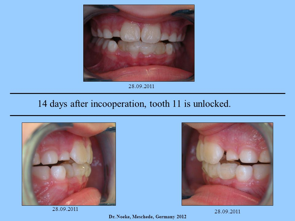 14 days after incooperation, tooth 11 is unlocked.