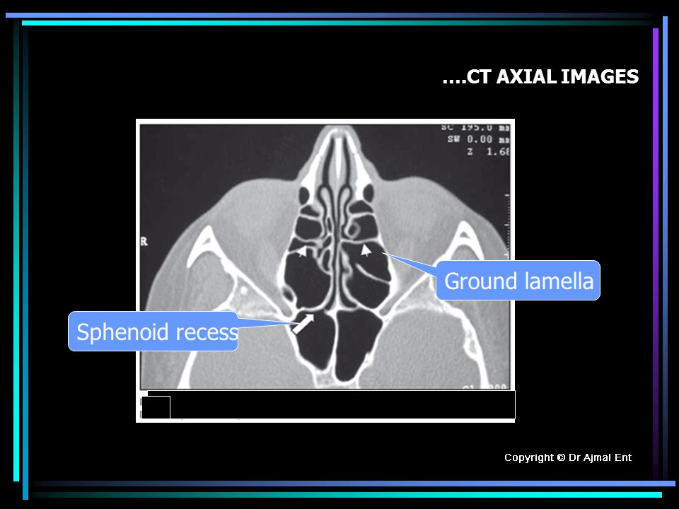 ….CT AXIAL IMAGES Ground lamella Sphenoid recess