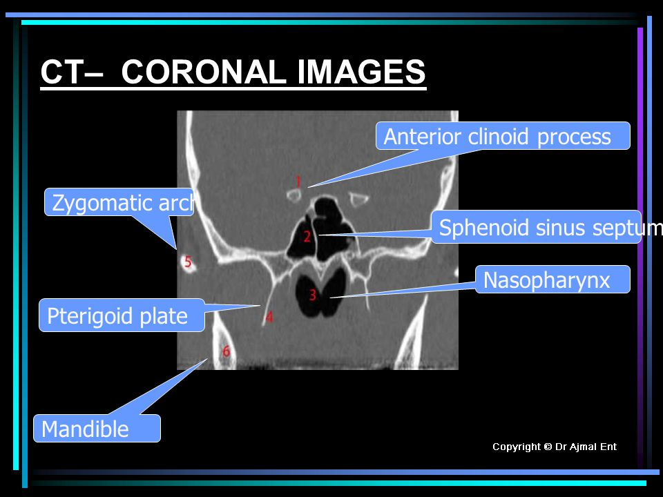 CT– CORONAL IMAGES Anterior clinoid process Zygomatic arch