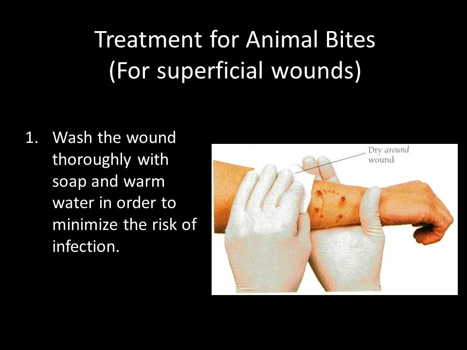 Treatment for Animal Bites (For superficial wounds)
